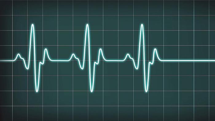 Herzfrequenz Monitor © Laz'e-Pete, stock.adobe.com